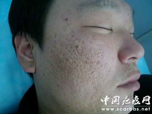 有效预防痤疮疤痕的方法分享