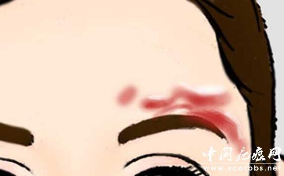 烧烫伤疤痕形成的色素沉着的护理方法