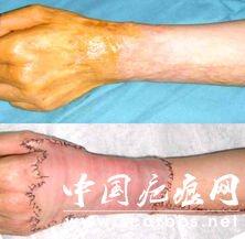 烧烫疤痕修复方法有哪些?