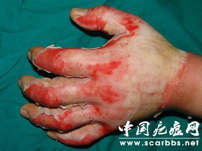 烧伤之后如何才能避免形成疤痕?