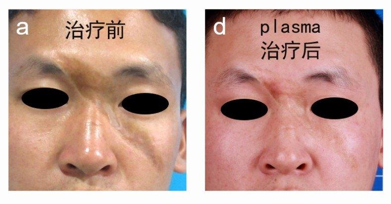 疤痕修复之非手术综合治疗方法