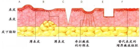 疤痕修复手术的常规手术切法图解