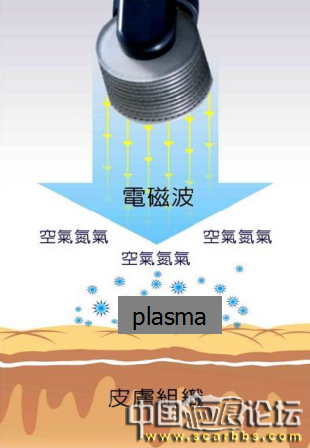 Plasma和点阵激光的区别是什么