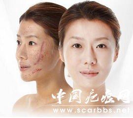 您身边的疤痕修复专家